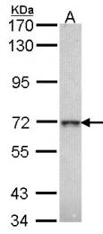 GTX104360 - Beta-galactosidase