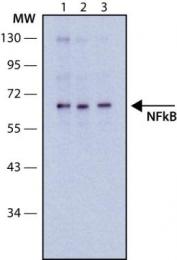 GTX10437 - RELA / NF-kB p65