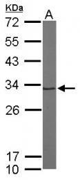 GTX104373 - PSMA1