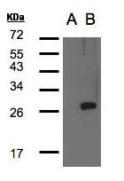 GTX104398 - LYPLA1