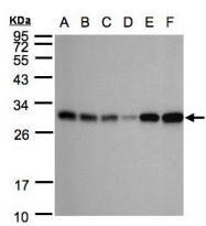 GTX104430 - Adenylate kinase 4 (AK4)