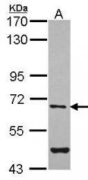 GTX104431 - Arylsulfatase G