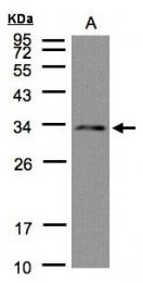 GTX104452 - NSL1