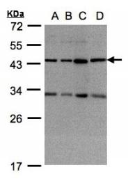 GTX104456 - DNAJC17