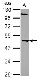 GTX104462 - PCYT2
