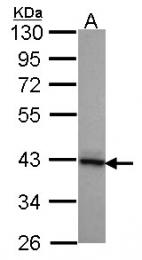 GTX104464 - DNAJB2