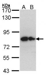 GTX104557 - Glypican-1 / GPC1
