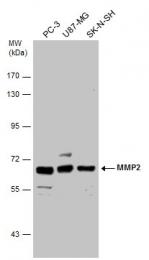 GTX104577 - MMP-2