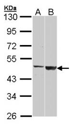 GTX104593 - GAL3ST1