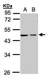 GTX104594 - Galactokinase 2