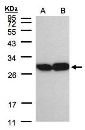 GTX104618 - Triosephosphate isomerase (TPI1)