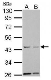 GTX104620 - Aurora kinase A