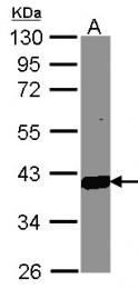 GTX104627 - AKR1C3 / DDH3
