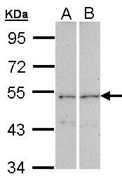 GTX104682 - CPEB1