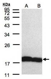 GTX104698 - Cyclophilin A