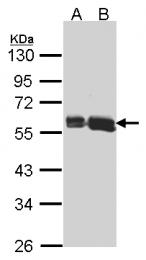 GTX104710 - AKT3 / PKB gamma