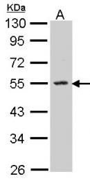 GTX104724 - Sphingosine kinase 1 (SPHK1)