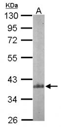 GTX104742 - ARPC1B / ARC41