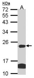 GTX104751 - Claudin-14 (CLDN14)