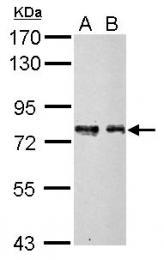 GTX104752 - MPP5