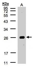 GTX104757 - 14-3-3 protein beta/alpha