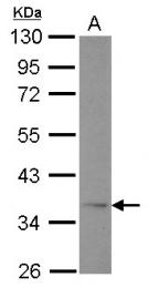 GTX104770 - Adiponectin Receptor 1