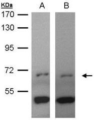 GTX104772 - Tyrosine-protein kinase ITK/TSK