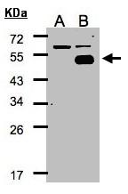 GTX104801 - NR2F1