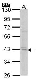 GTX104810 - DAPK2 / DRP-1
