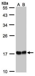 GTX104815 - HSPB8 / HSP22