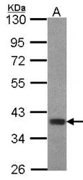 GTX104844 - FOXB1 / FKH5
