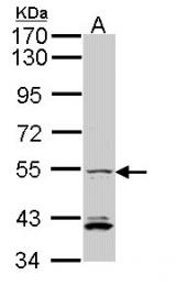 GTX104852 - IRF5