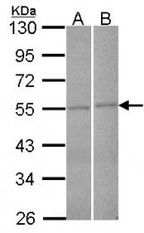 GTX104864 - FBXL2 / FBL2 / FBL3