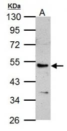 GTX104880 - Calsequestrin-1