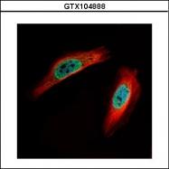 GTX104888 - CLIC4