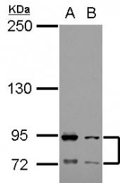 GTX104902 - CD89 / FCAR
