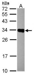 GTX104919 - HLA class II DR beta 1 / HLA-DRB1