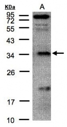 GTX104964 - Ketosamine-3-kinase