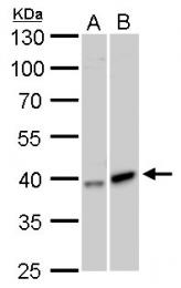 GTX105024 - Galactokinase 1