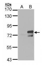 GTX105060 - ARNTL / BMAL1