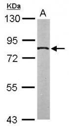 GTX105062 - SLC20A1 / PIT1