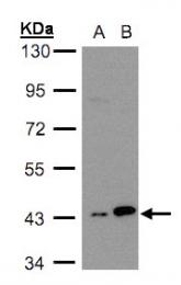 GTX105147 - MAPKAP Kinase-3