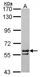 GTX105148 - CCT6A / TCP1 zeta