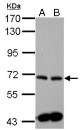GTX105152 - Sphingosine kinase 2 / SPK2