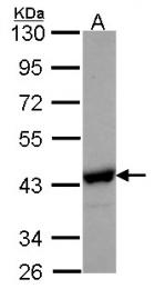 GTX105223 - NANS