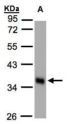 GTX105225 - Scramblase 1 / PLSCR1