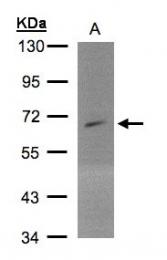 GTX105234 - PIP5K1A