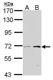 GTX105243 - CROT