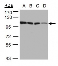 GTX105248 - Hexokinase-1