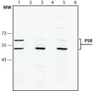 GTX10526 - JMJD6 / PTDSR